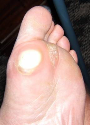 callus on bottom of foot