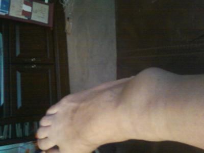more swelling when I walk on it