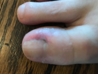 infected ingrown nail?