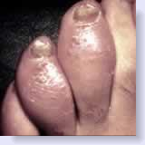sausage toes seen in psoriasis