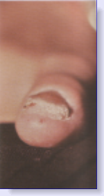 psoriasis of the toenail