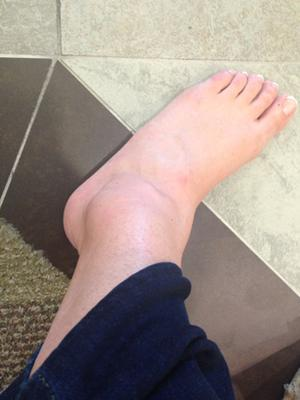 ankle before