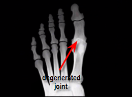 degenerated great toe joint