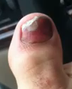 bleeding under toenail