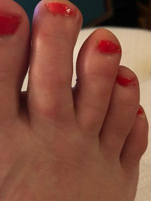second toe is swollen (right foot)