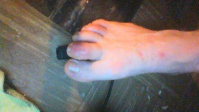 cellulitis second toe