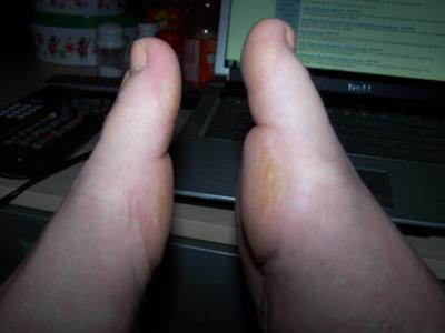 This shows the swelling on the right foot