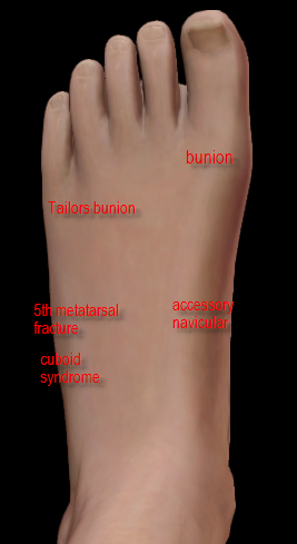 pain on side of foot