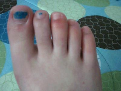 3rd, 4th, and 5th right toes swollen