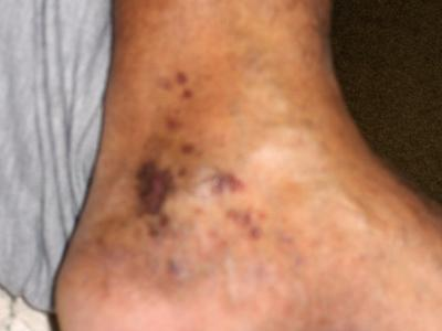 Pic of sores/spots on Ankle.