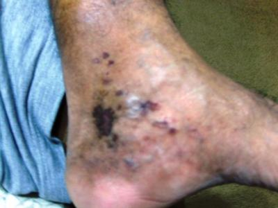 venous distention on medial side of ankle