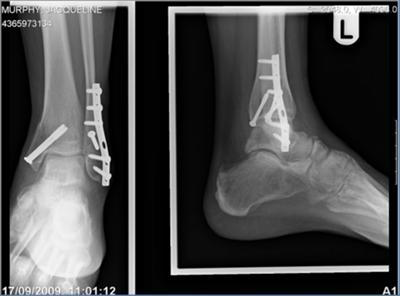 post operative  broken ankle with screws and plates