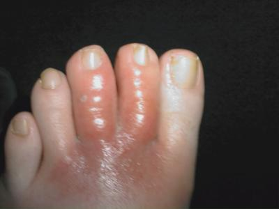 infected toes