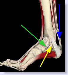 tendinitis inside part of foot