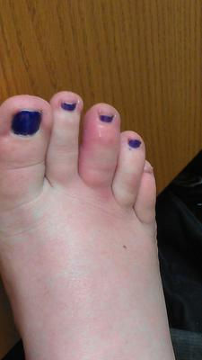 red and swollen toe