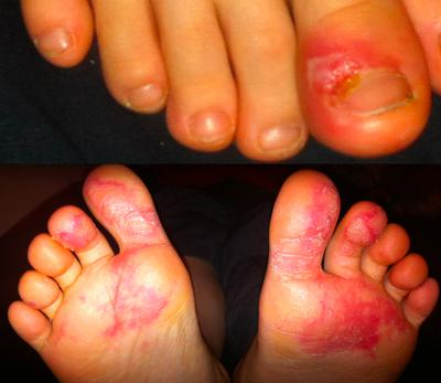 eczema or athletes foot?