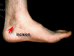 curvilinear incision for tarsal tunnel