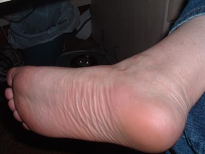 bottom-of-foot-swollen-creamy-dripping-pussy