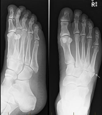 non displaced fifth metatarsal fracture