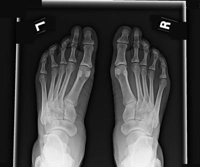 osteoporosis in the foot
