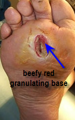 ulcer with granulating base