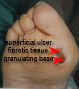 ulcer with granulating and fibrotic base