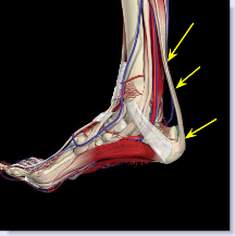three areas of pain in Achilles tendonitis