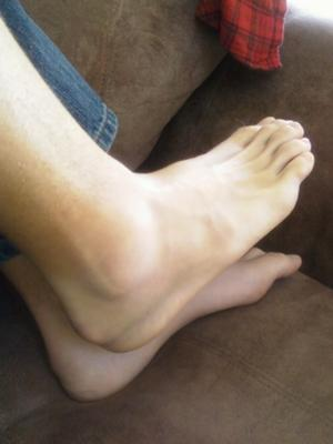 four weeks after lateral ankle sprain