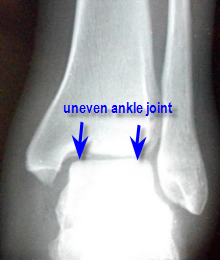 abnormal ankle mortise xray
