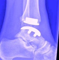 ankle implant