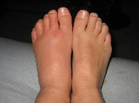 cellulitis_foot