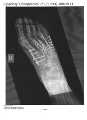 X-ray after my first follow-up visit to the surgeon (approximately the 2nd week of August).