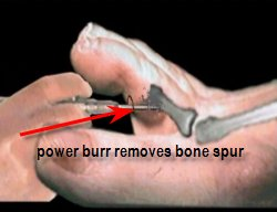 section of bone to be removed in soft corn