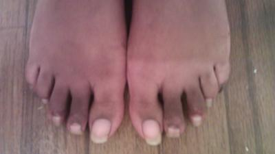 Both feet are different from hammertoe surgery