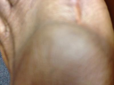 cyst on top of foot