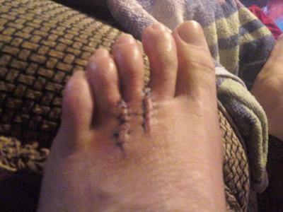 2 weeks after surgery to remove both neuromas