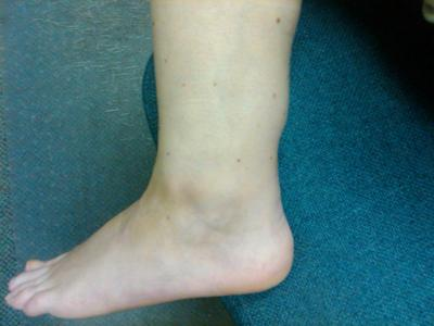 outer left ankle
