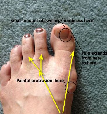 Pain From Outer Edge Of Big Toe Nail Down To Base Of Toe