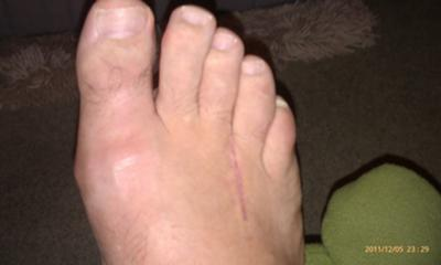 4 weeks post neuroma surgery