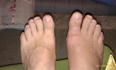 four weeks post neuroma surgery  right foot