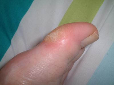 thickened skin on big toe