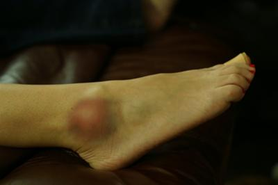 This is first day, several hours after initial swelling.