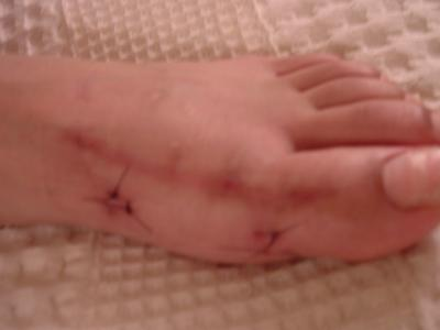 Left Foot (still with sutures from third surgery to remove screws from previous bunionectomies)