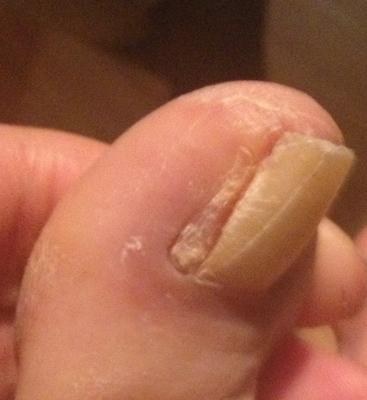 four months post ingrown nail surgery