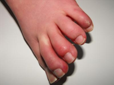Toes Showing Tightness & Red Blotches