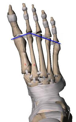 metatarsal parabola and bunion surgery