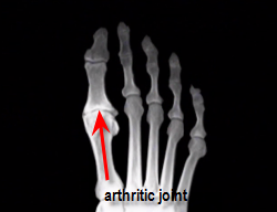 pre-operative degenerated joint of foot