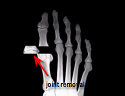 removal of arthritic joint