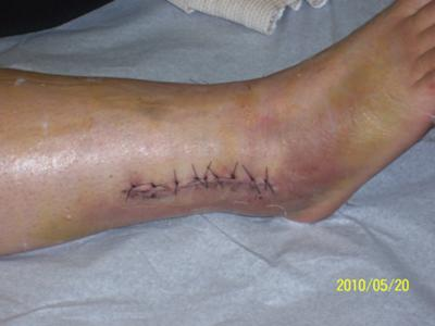 before the cast was put on.