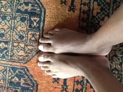 top of foot swelling